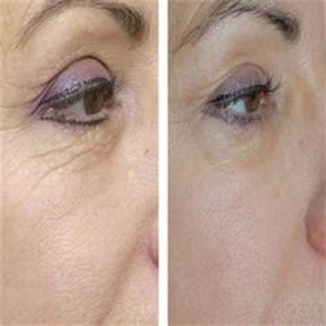 coconut oil before bed wrinkle remedies on pinterest natural wrinkle remedies under eye wrinkles and age