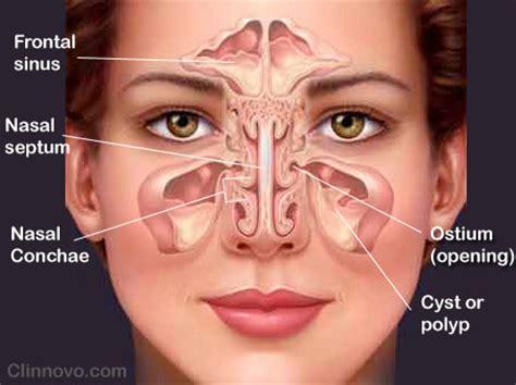 Sinus Resdung sinusitis