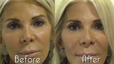 Your Look Younger In 20 Minutes 2 by How To Get Younger In 20 Minutes Fab At Any Age