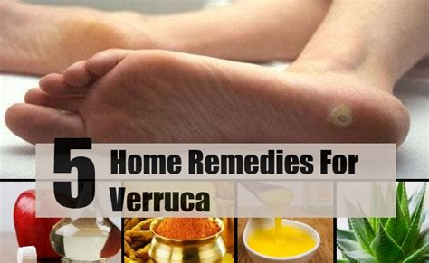 5 verruca home remedies treatments cure find
