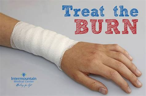 how does a rug burn take to heal treating burn injuries from fireworks intermountain healthcare