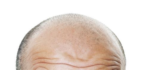 latest news and research on hair loss latest hair loss cure hairstyles