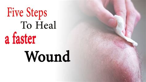 7 Remedies To Help A Wound Heal Quicker by How To Heal Wounds Fast Home Remedies 5 Steps To Heal A