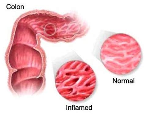 colitis causes symptoms treatments diet irritable