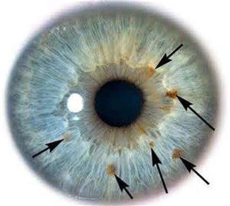 iris pattern types 15 best iris patterns iridology images on pinterest