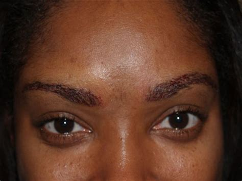 eyebrow shaping on african americans african american eyebrows patient 55