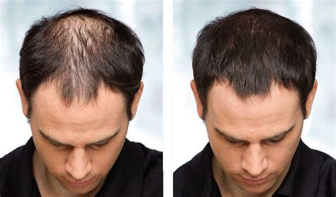 can african american women use rogaine effective hair loss treatments for men and women