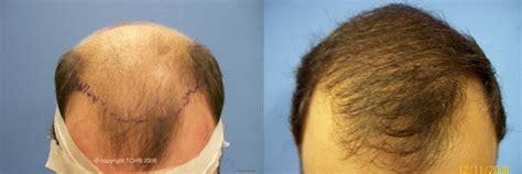 hair transplant orlando hair restoration orlando best before and after 5 171 hair transplant technicians orlando fl