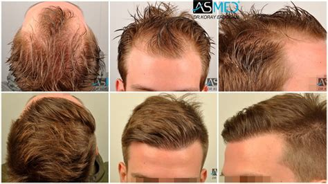 Norwood Hairstyles by Norwood 2 Hairstyles Www Imgkid The Image Kid Has It