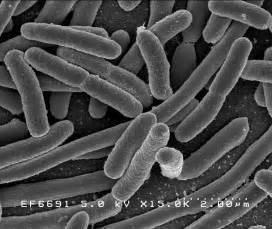 Money Tree Plant Diseases - file escherichiacoli niaid jpg wikimedia commons