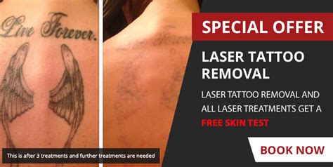 tattoo removal pregnant removal in billingham bare essentials east