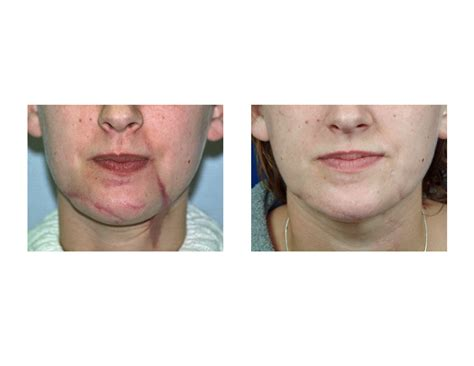 plastic surgery for c section scar scar revision archives page 3 of 6