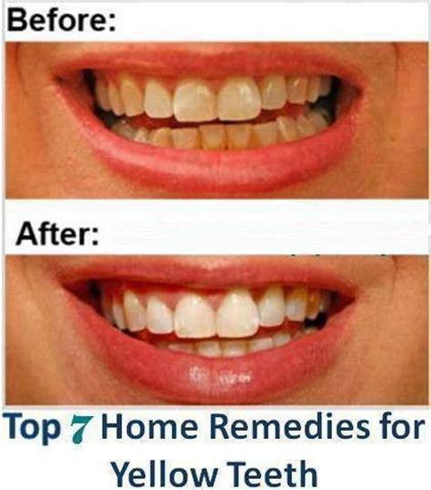 top 7 home remedies for yellow teeth
