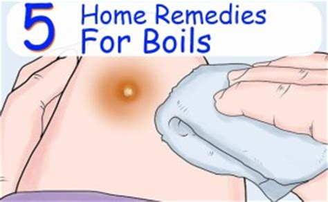 Home Remedies For Boils On by 5 Best Home Remedies For Boils Morpheme Remedies