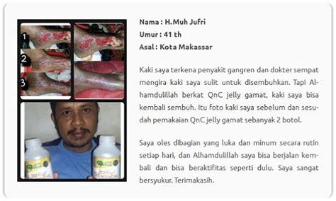 Obat Herbal Luka Bernanah Jelly Gamat Qnc cara mengobati luka borok bernanah secara tradisional