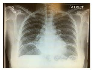 idiopathic air the diaphragm laparotomy or laparoscopy
