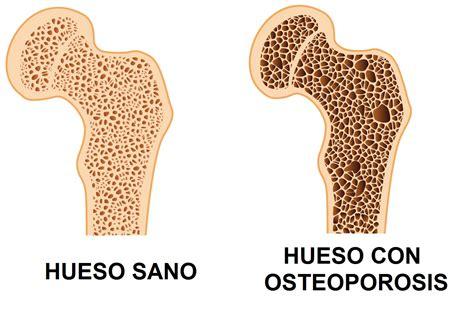 alimentos contra la osteoporosis frutos secos el arma contra la osteoporosis