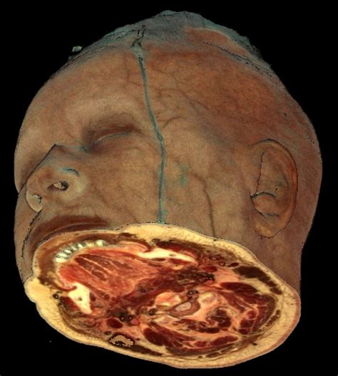 cross section of human body cross section of human head ailments diseases human