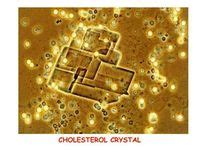 alcohol stains toilet seat 16 best images about crystals in urine on pinterest
