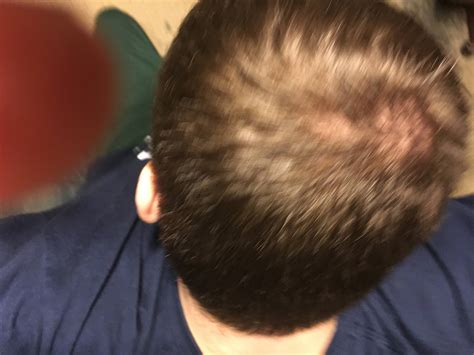 bald spot from curling iron cowlick or bald spot on back of head hairstylegalleries com
