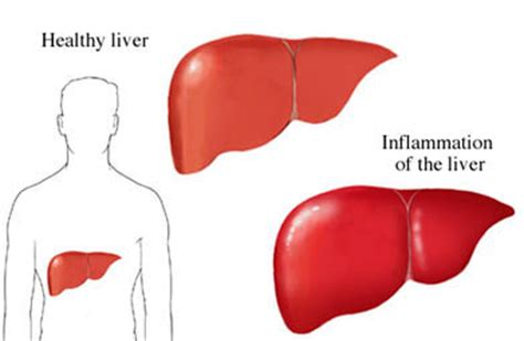 Detoxing Liver Heptiitis C by Inflammation Of The Liver Hcv New Drugs