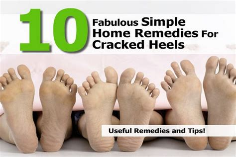 10 fabulous simple home remedies for cracked heels