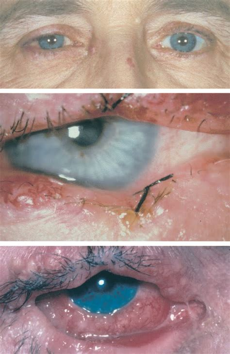 mites symptoms pictures image gallery eyebrow bugs