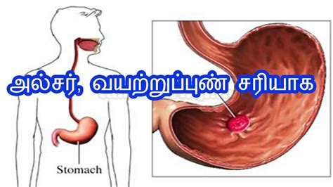 stomac pain symptoms in tamil அல சர வயற ற ப ப ண சர ய க stomach ulcer home remedy in