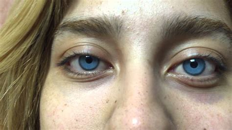 changing eye color permanently changing your eye color bright ocular
