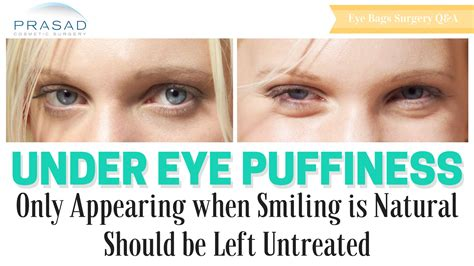 Do They Make Botox For Bags by Puffiness That Only Appear When Smiling Do Not