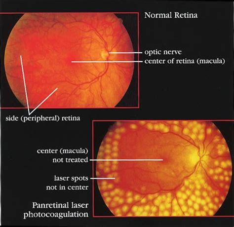 diode laser retinal photocoagulation diode laser retinal photocoagulation 28 images aflibercept superior to photocoagulation for