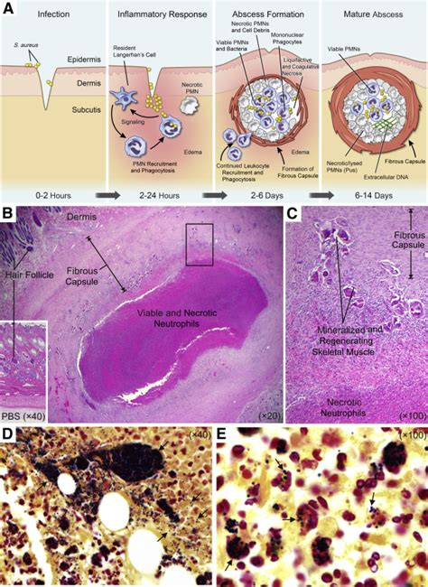 Staph Infection C Section by Pathogenesis Of Staphylococcus Aureus Abscesses The