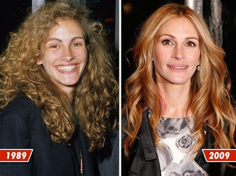 celebrity plastic surgery 24 before after pictures 2015 celebrity plastic surgery before after 2012