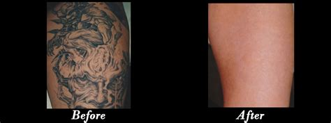 removing a tattoo with salt laser removal