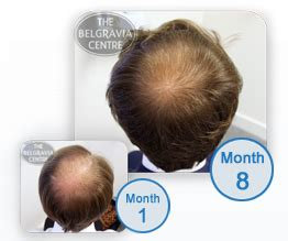 covering thinning hair on crown hair loss of the crown and vertex regrow hair on a