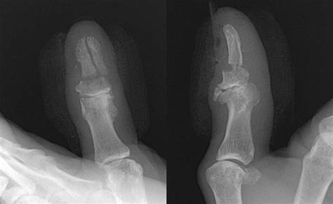 nail bed repair 3 nail bed repair plastic surgery key