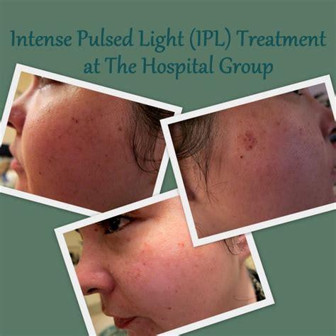 Pulsed Light Treatment by Treatment Tales Pulsed Light Ipl Laser Skin