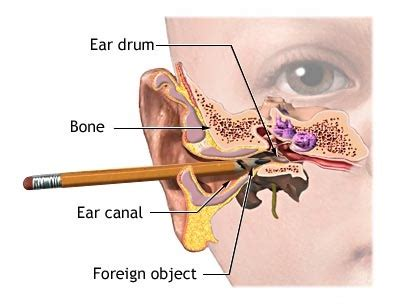 diagram of ear canal with wax earwax blockage causes symptoms diagnosis and treatment