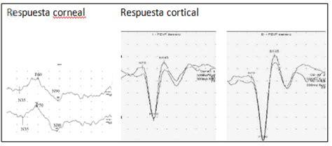 pattern erg p50 neurophysiology for eye diseases