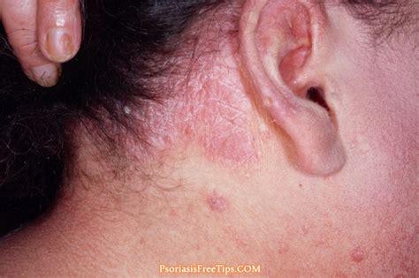scalp psoriasis the psoriasis and psoriatic arthritis scalp psoriasis how to identify the symptoms