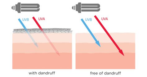 uv l for skin treatment basic information on uv phototherapy for psoriasis