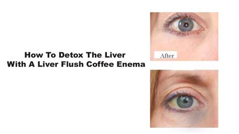 Circle Liver Detox Complex by Colonic Irrigation Detox Liver Coffee Cleanse