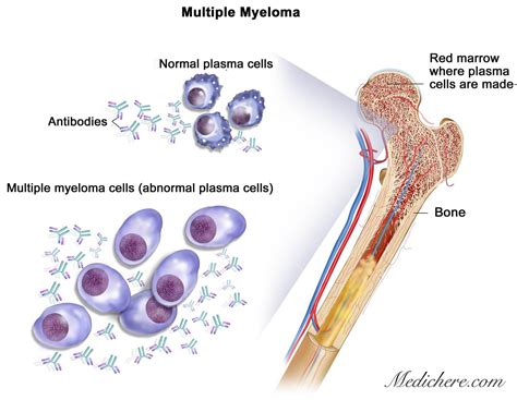 cancer expectancy myeloma cancer expectancy the one step home care