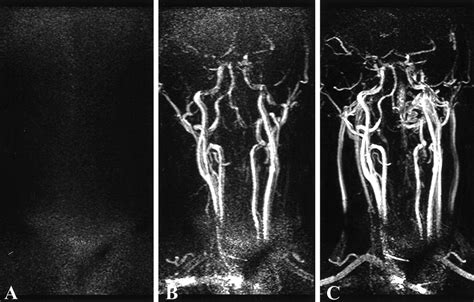 Three Dimensional Contrast Enhanced Mr Angiography Of Aortic Dissection A Pictorial Essay by Time Resolved Contrast Enhanced Carotid Mr Angiography Using Sensitivity Encoding Sense