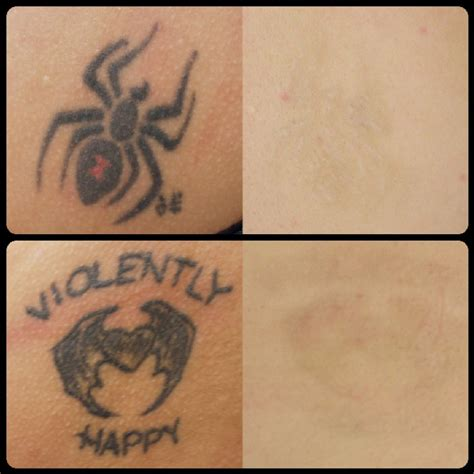 skin tattoo removal laser removal washington dc cosmetic skin