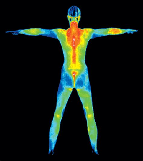 infrared thermal thermography clinic minneapolis minnesota alternative to