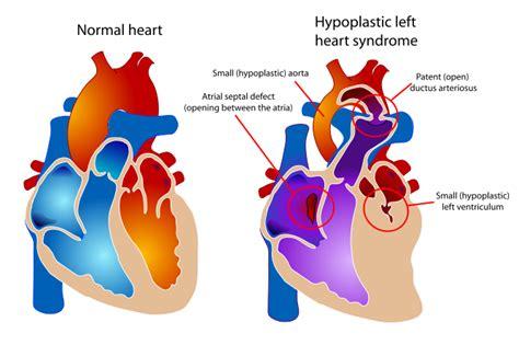 warden procedure diagram hypoplastic left hlhs congenital