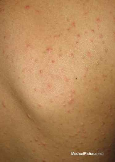 Chicken Pox Pictures Early Stages Rash