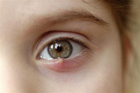 orzaiolo sintomi e rimedi per curare o prevenire