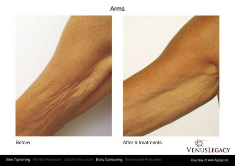 crepey skin on arms laser skin tightening abdominal skin tightening